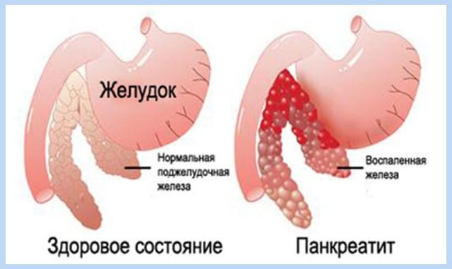 Обережно: панкреатит! Як вчасно помітити і вилікувати