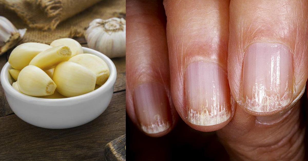 Домашні засоби для зміцнення нігтів і позбавлення від інфекцій