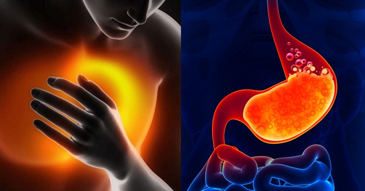 Причини печії і як її лікувати природним шляхом. А все дуже просто