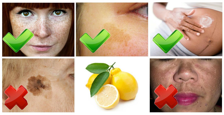 Домашні засоби очистять шкіру від пігментних плям: 11 рецептів, перевірених часом