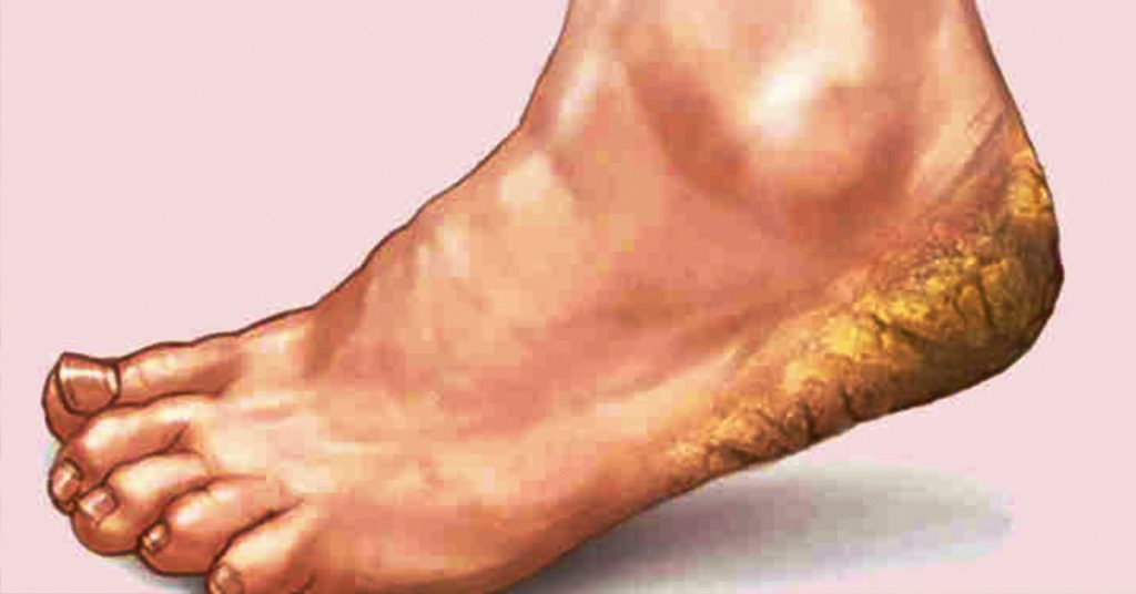 П'яти як у немовляти: тріщини на п'ятах - 3 кращих і корисних ванночок для ніг