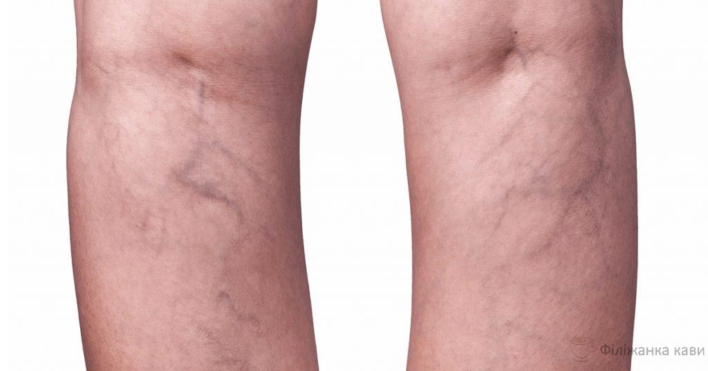 Венозний тромбоз у людей старше 50 років можна запобігти! Прості поради.