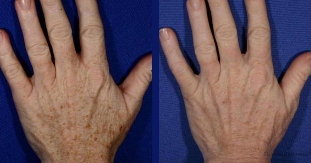Омолодження шкіри рук: 5 домашніх рецептів для видалення зморшок і пігментних плям!