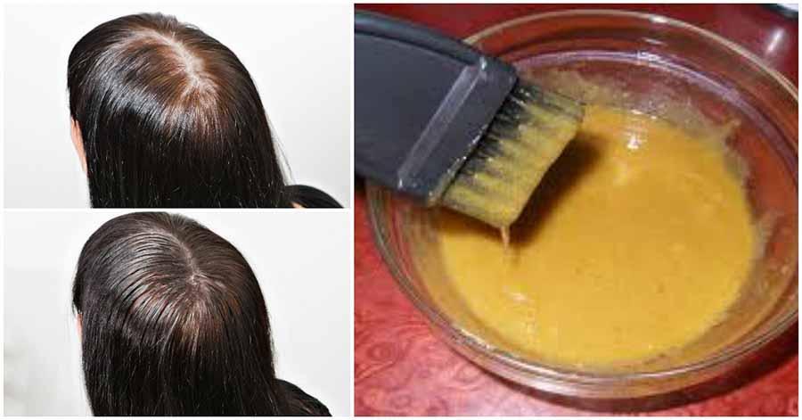 Зупинити випадання волосся і зробити їх густіше допоможуть ці маски