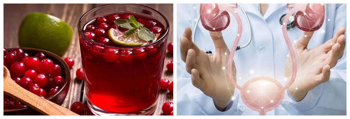 4 способи очищення сечового міхура і профілактики циститу. І забудьте про неприємні відчуття