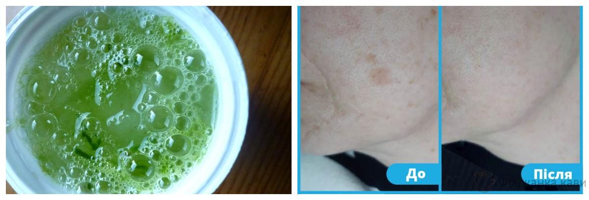 Ефективні натуральні засоби від пігментних плям і освітлення шкіри! Не повірите, але це працює