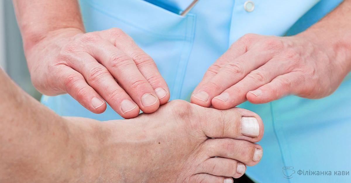 Кісточка на нозі: 3 домашні засоби допоможуть позбутися від цієї болючої проблеми! Відео