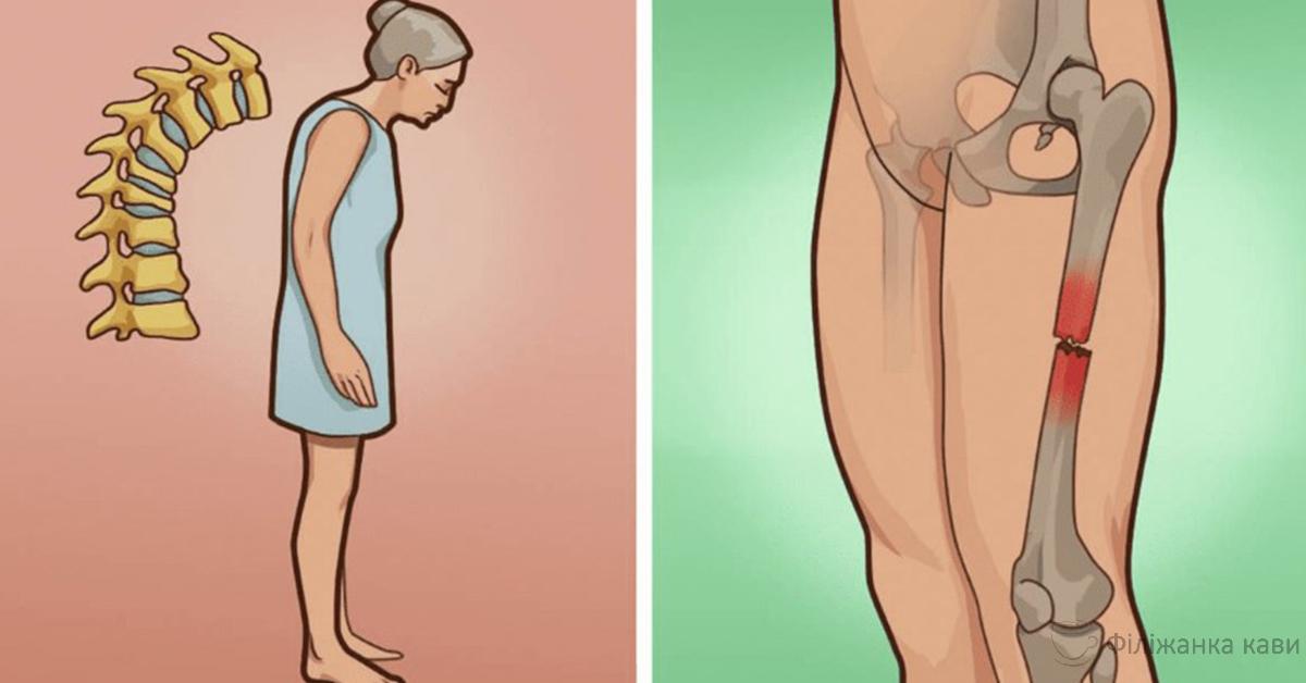 Все про остеопороз: фактори ризику, симптоми і лікування!