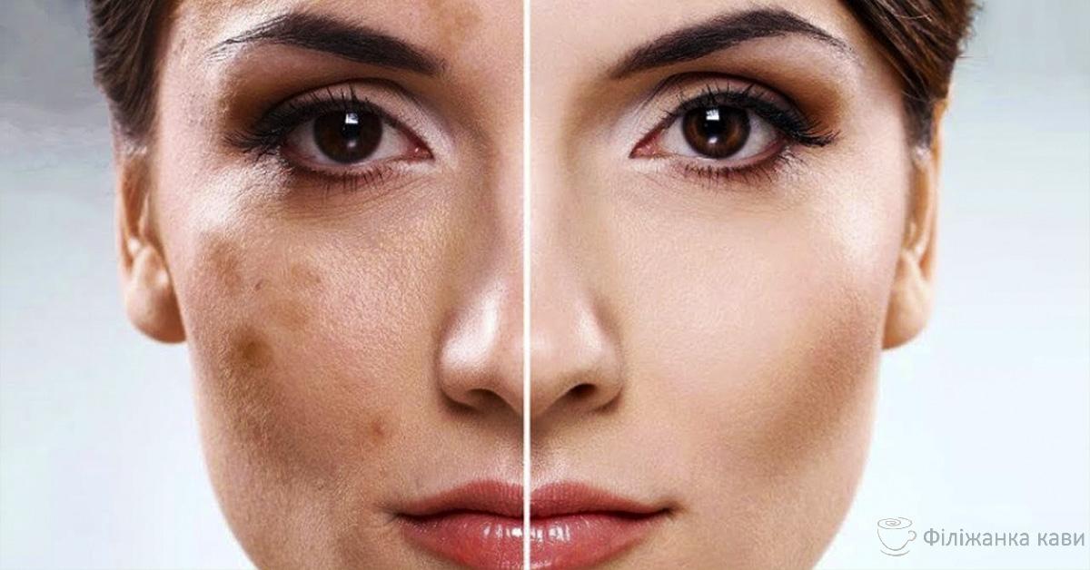 Відбілити обличчя молоком за п'ятнадцять хвилин! Швидко і ефективно