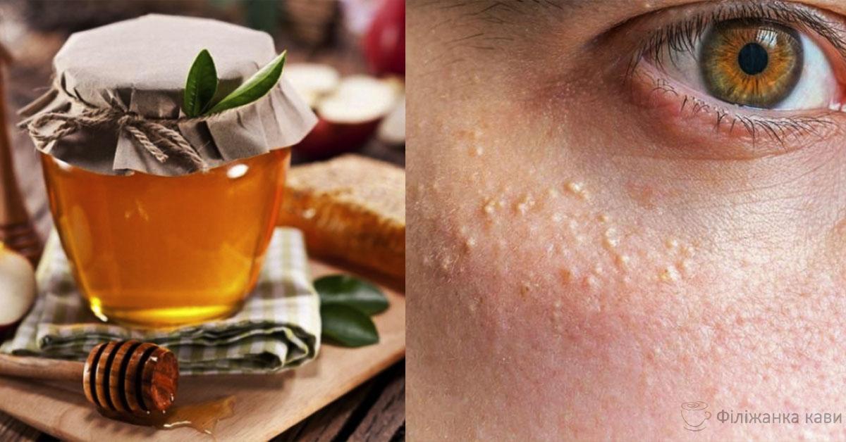 Ось як прибрати білі жировики під очима: 6 ефективних натуральних засобів