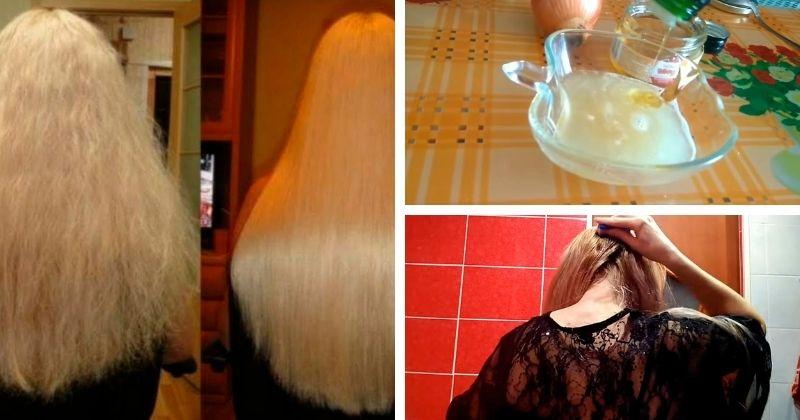 Цибулева маска, яка допоможе запобігти сильному випадінню волосся