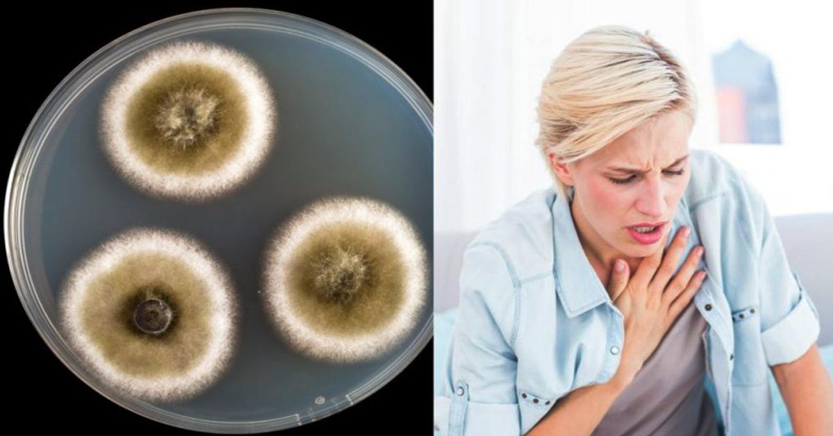 Ознаки отруєння токсинами отруйної цвілі! Про це більшість і не здогадуються