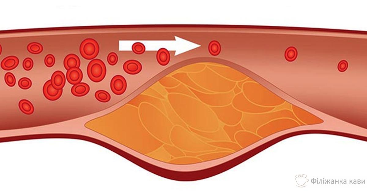 Цей рецепт очищає артерії, контролює кров'яний тиск і зміцнює імунітет!