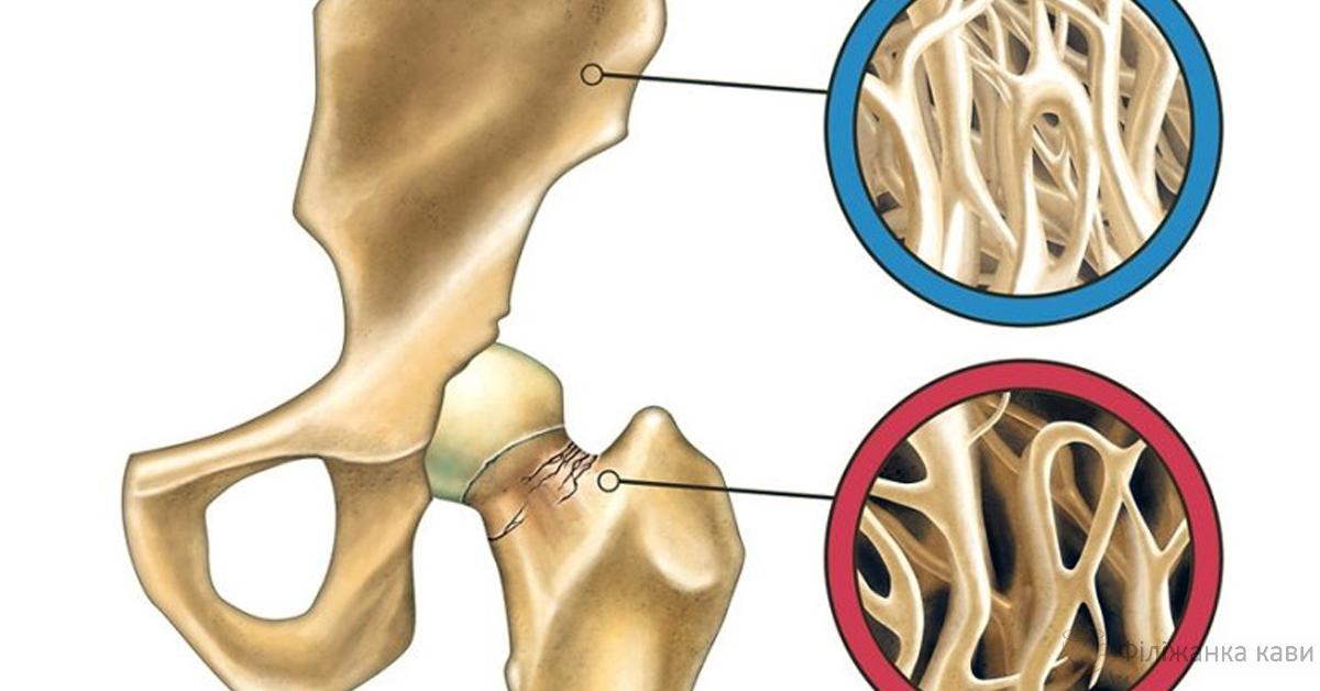 Ось як поповнити запаси кальцію і зупинити розвиток остеопорозу!