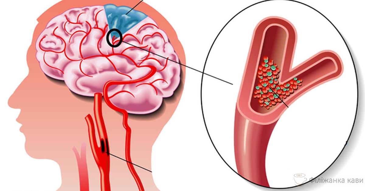 Інсульт: 5 продуктів для захисту мозку, серця і судин!