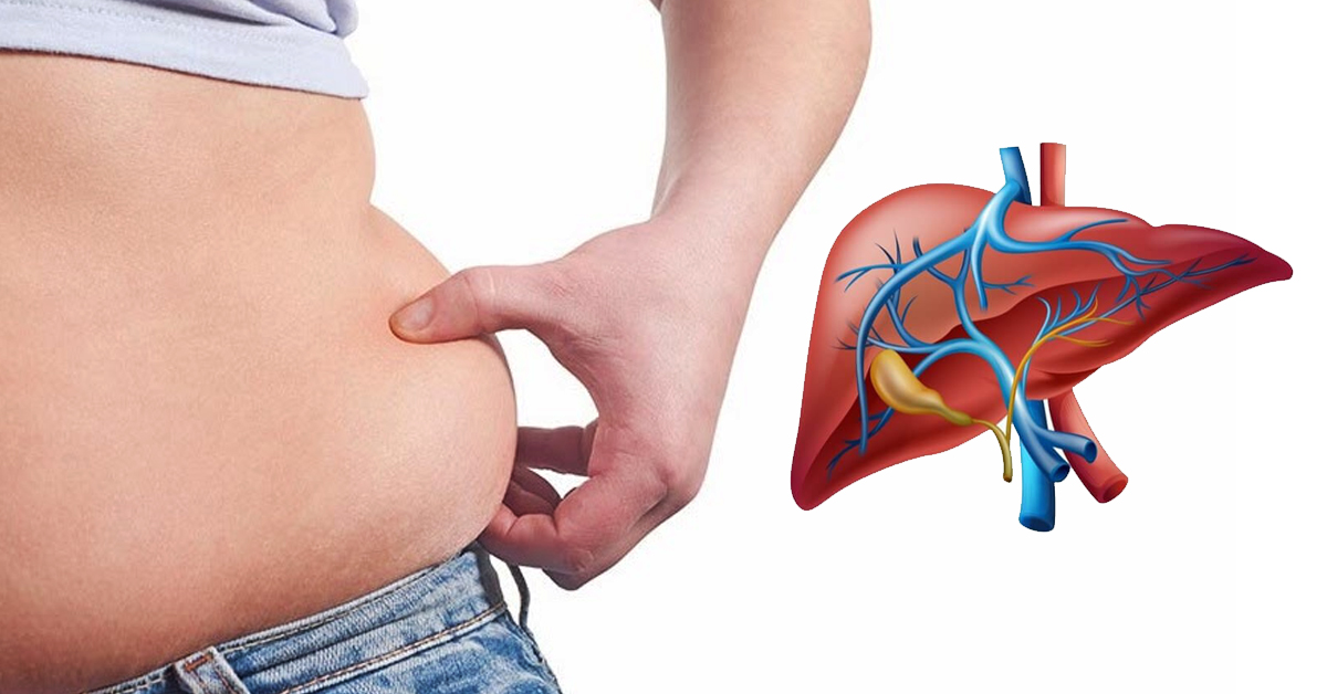 Засоби для очищення печінки усунуть зайву вагу, метеоризм, затримку рідини і не тільки ...