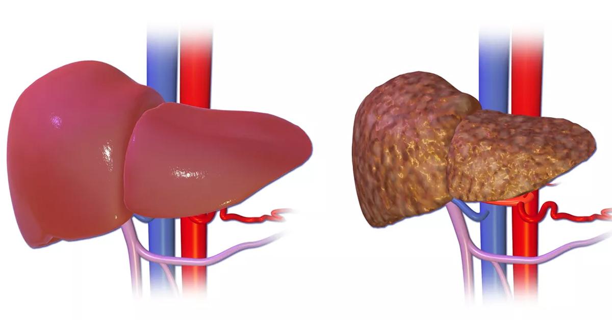 Повністю відновить клітини печінки і жовчного міхура цей простий рецепт!