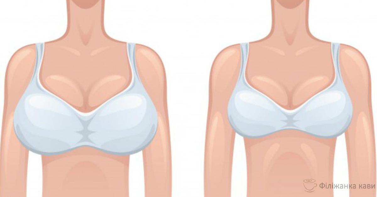 Зменшити розмір бюста допоможуть 3 простих домашніх засоби!