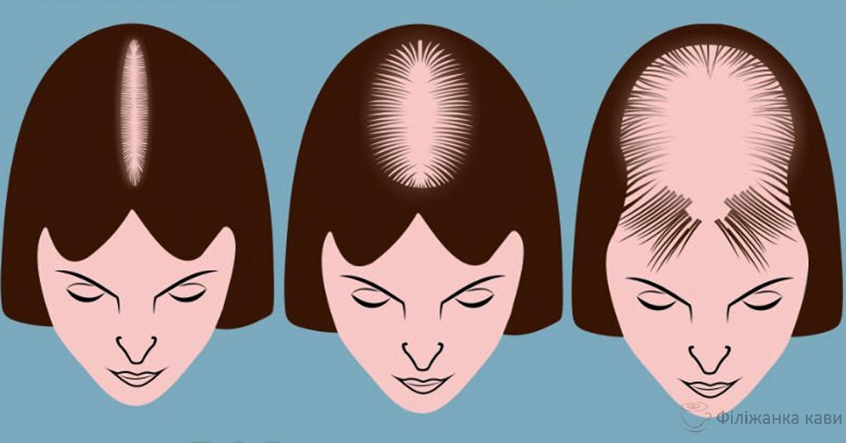 6 проблем з волоссям є симптомами серйозних проблем зі здоров'ям!
