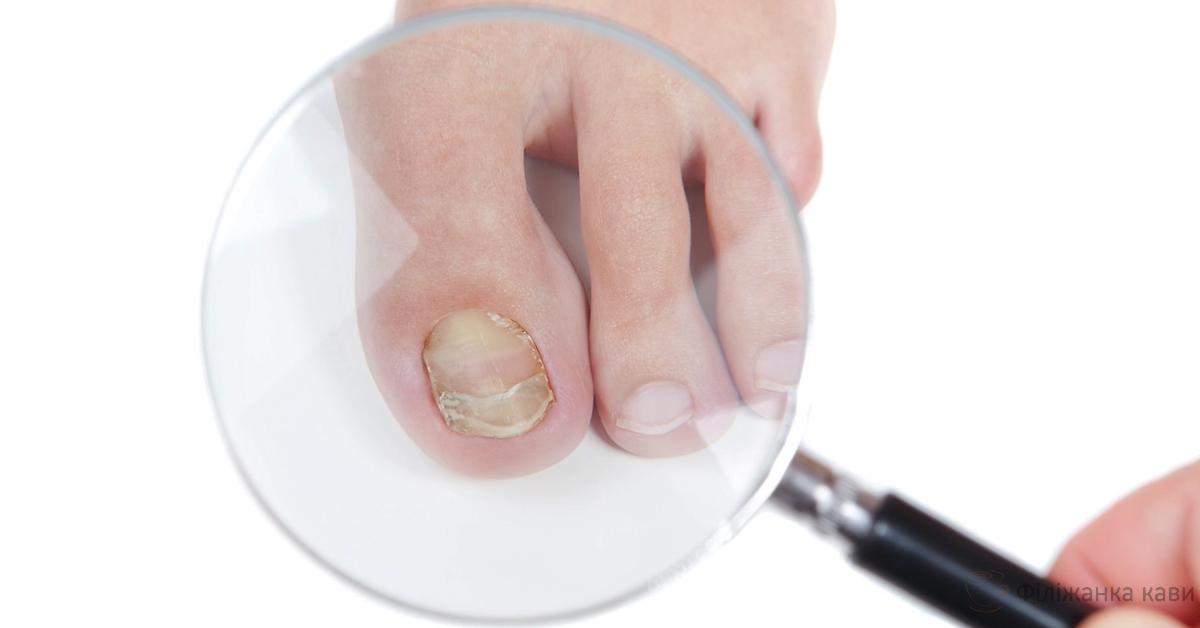 8 домашніх засобів для усунення грибка на нігтях і шкірі! 100% результат