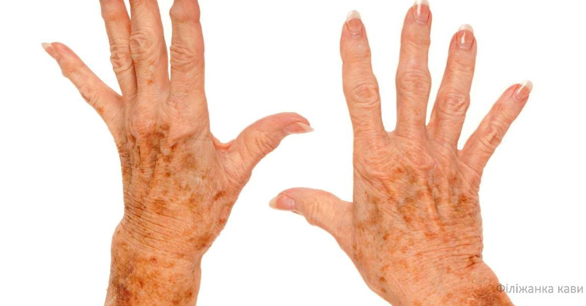 Домашні засоби від вікових плям на шкірі: 3 ефективних рецепти