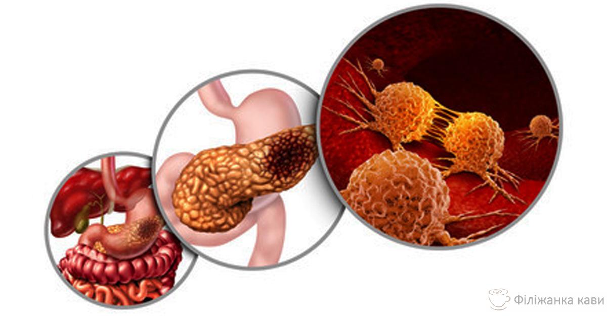 Потужний засіб від раку, діабету, атеросклерозу і не тільки ...