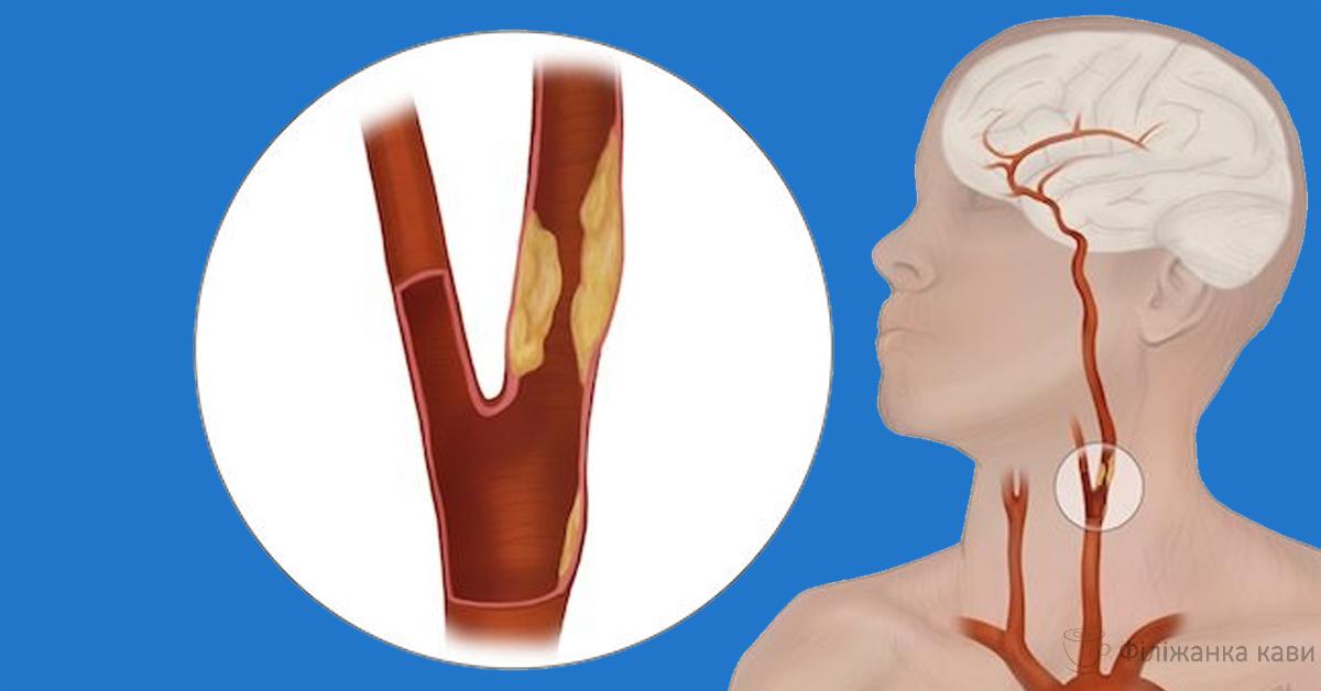 Лікар називає 4 головних вороги артерій і 4 способи зберегти їх здоровими і гнучкими!