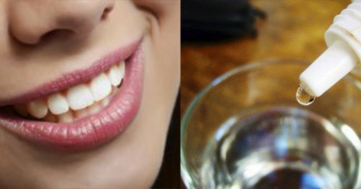 Крапля цього засобу відбілить зуби, усуне запах і навіть зубний камінь. Мало того, цей засіб бореться