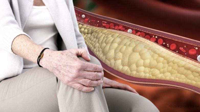 Ці 12 небезпечних симптомів попереджають про високий рівень поганого холестерину! Ви навіть не здогадуєтесь про це...