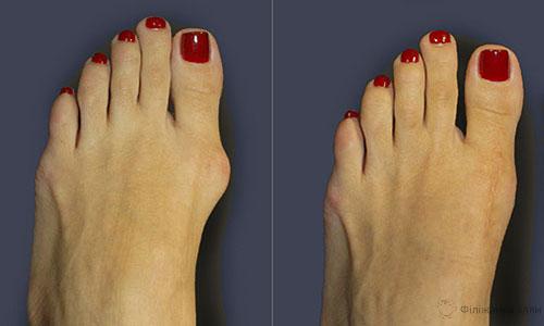 Болі, запалення і деформація великого пальця стопи: 6 домашніх засобів для 100% усунення! Ефект вас порадує