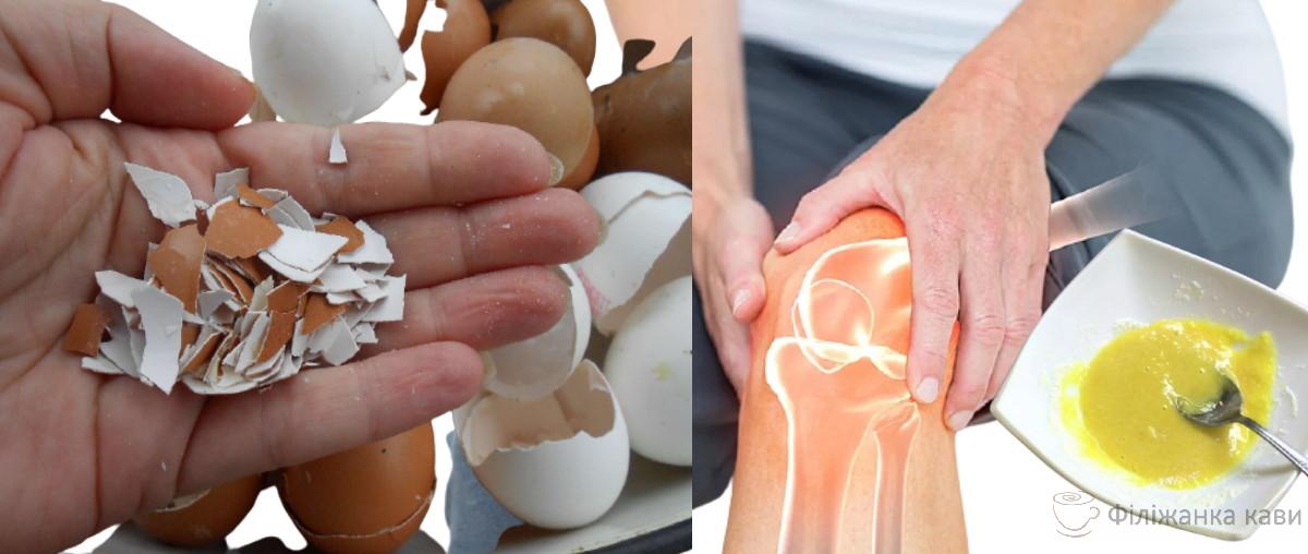 Найефективніші народні засоби від болю в суглобах - я раніше про це не знала
